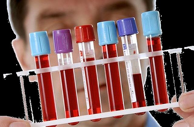 что показывает общий анализ крови
